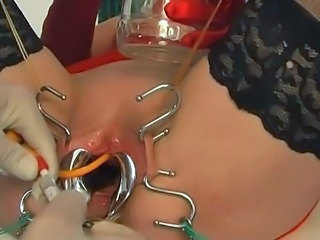 Kinkycore catheter insertion